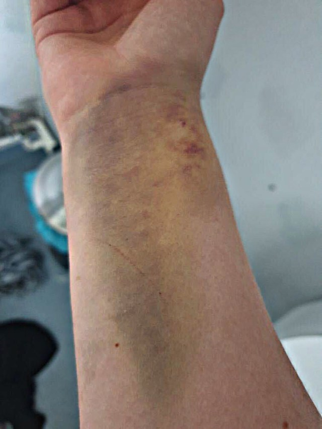 Efter ett anfall vaknade Frida med blåslagna armar, då hon fastnat i sidorna av sjukhussängen och krampat i timmar. Ingen hade hört henne. Bild: Privat.