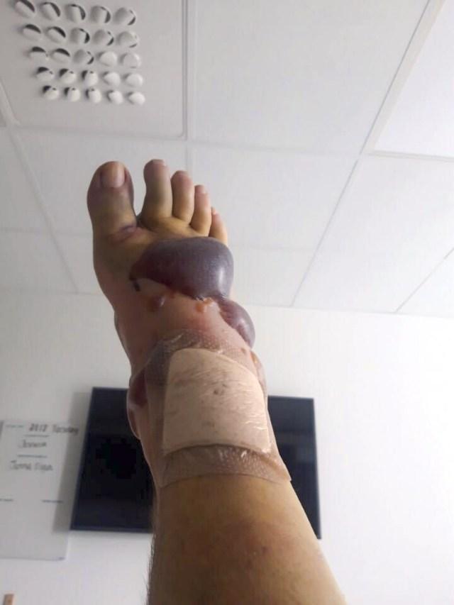Foten är för skadad för en operation som kommer utföras när de värsta svullnaderna gått ned. Bild: Privat.