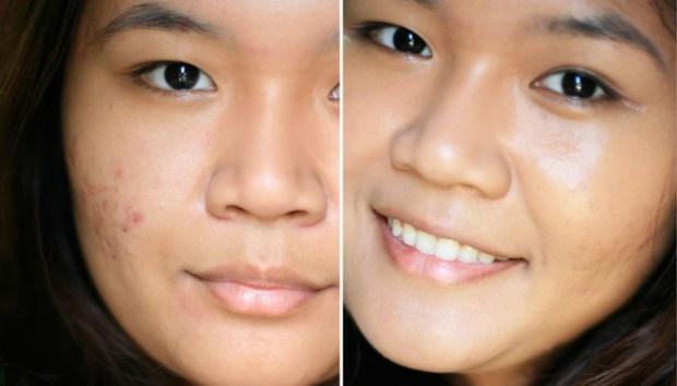 acne marks