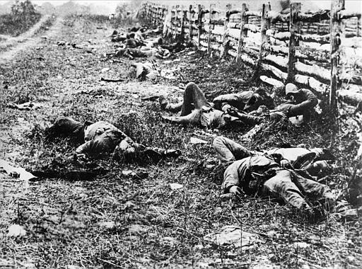 AMERICAN CIVIL WAR CASUALTIES  Buy Photos  AP Images