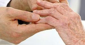 Synovia arthritis score calculator