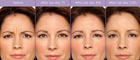 Botox Wrinkles Smoothing