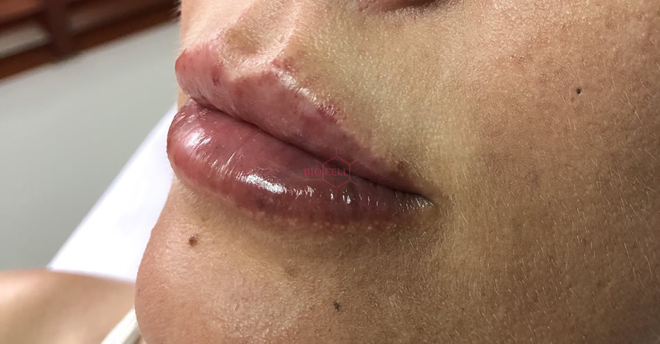 After-Lips Augmentation
