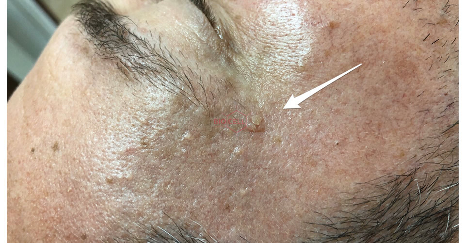 Before-Skin Growth Removal
