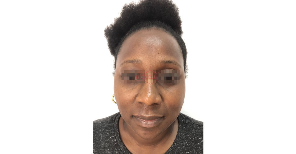 After-Skin Rejuvenation & Double Chin Slimming