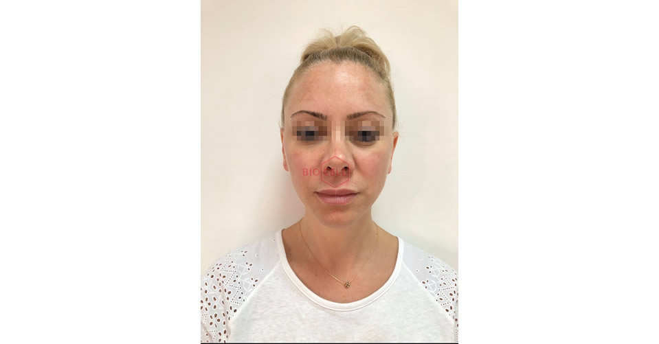 Before-Complex Facial Recontouring with Juvederm Dermal Fillers