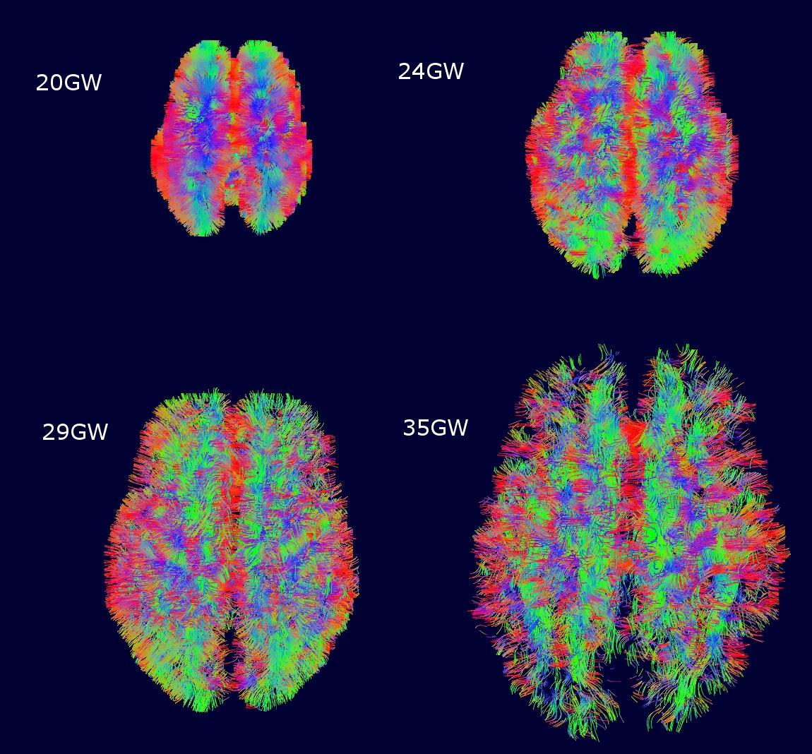 New technology images fetal brain activity in 4D   UW ...