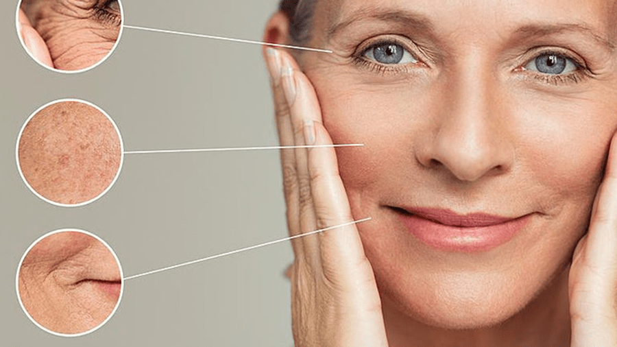 Ageing and Cosmetic Problems Adavanced Training