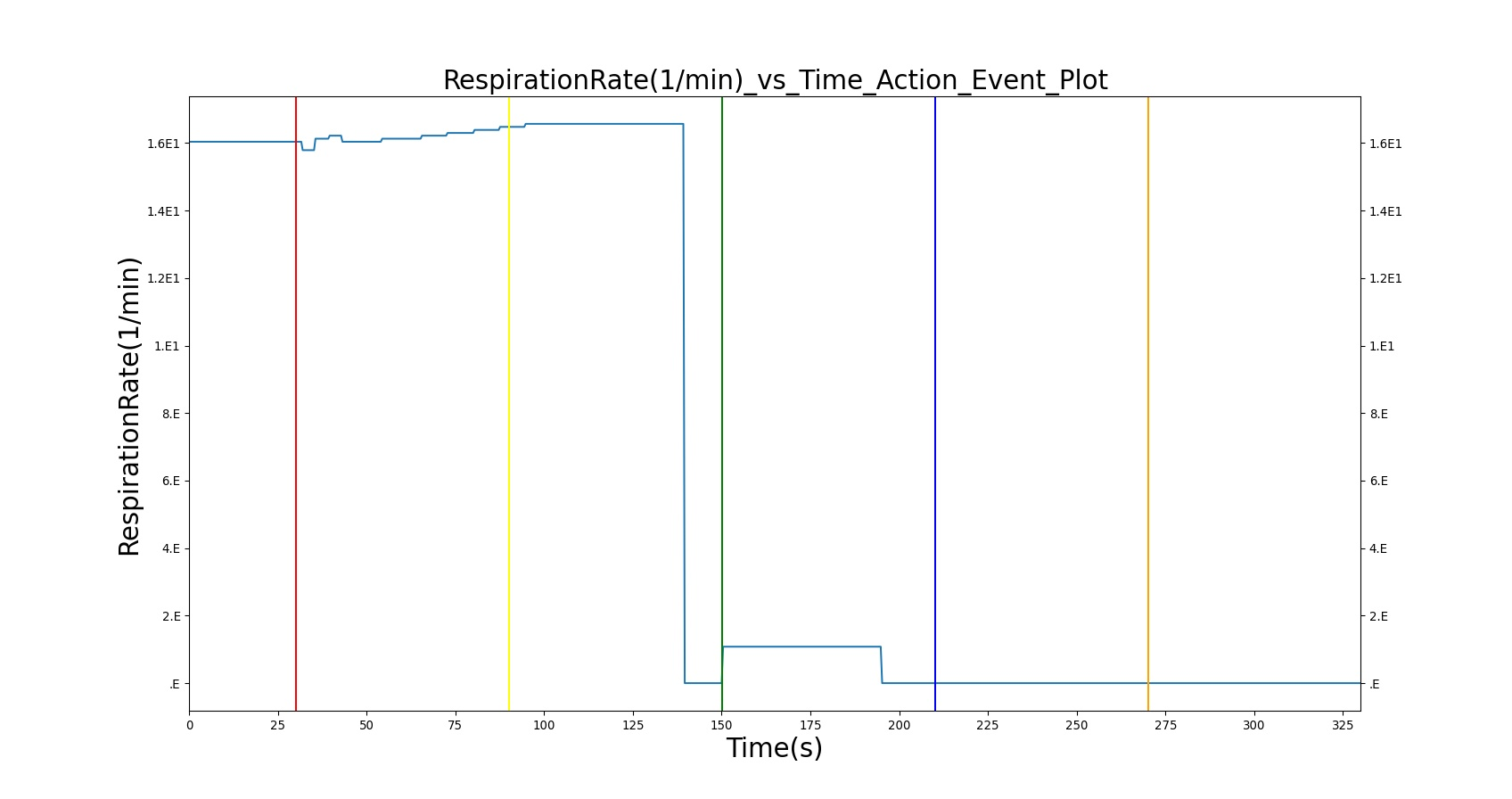 hight resolution of these plots show the successful implementation of various anesthesia machine settings the first region has the machine connected and provides supplemental
