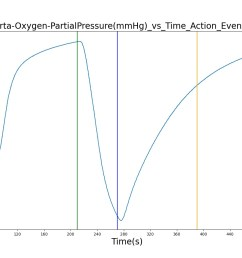 the oxygen supply failure due to o2 wall pressure loss causes a drop in arterial oxygen level while re supplying the system with oxygen by turning off the  [ 1600 x 800 Pixel ]