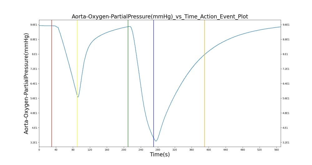 medium resolution of the oxygen supply failure due to o2 wall pressure loss causes a drop in arterial oxygen level while re supplying the system with oxygen by turning off the