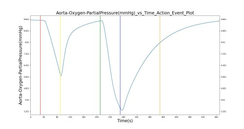 small resolution of the oxygen supply failure due to o2 wall pressure loss causes a drop in arterial oxygen level while re supplying the system with oxygen by turning off the