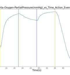 figure 12 select outputs from the ventilator pressure loss scenario  [ 1600 x 800 Pixel ]
