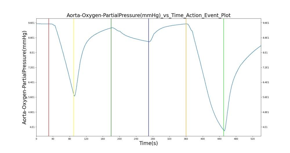 medium resolution of figure 12 select outputs from the ventilator pressure loss scenario