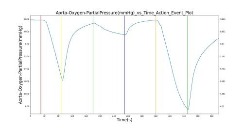 small resolution of figure 12 select outputs from the ventilator pressure loss scenario