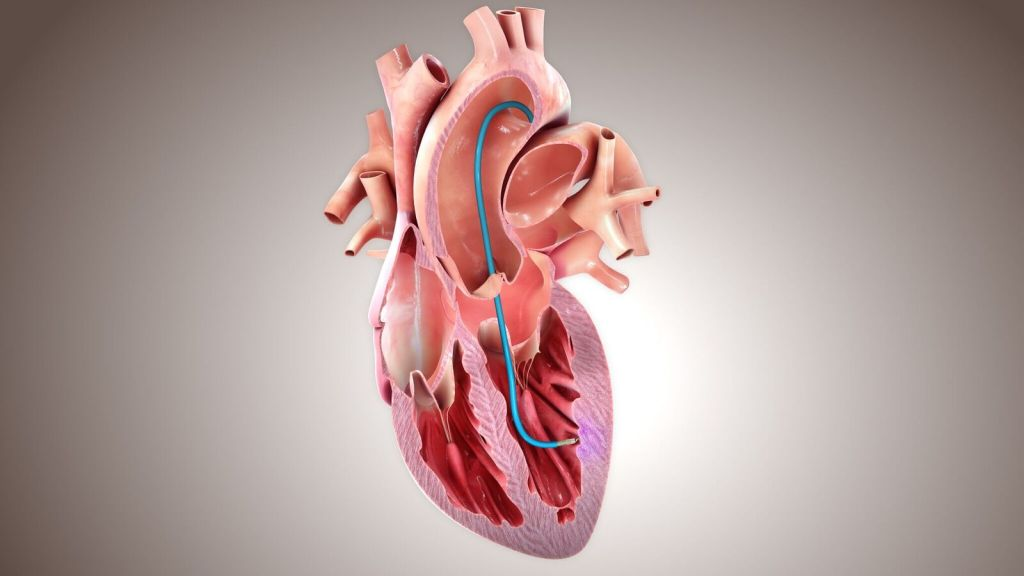Preliminary Results From BioCardia's Phase III Pivotal CardiAMP Heart Failure Trial Reported In Circulation Research Journal