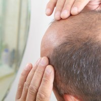 Stem Cell Treatment For Hair Loss
