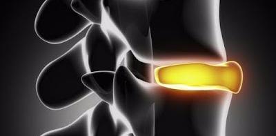 Biokineticist Biokinetics Back Pain