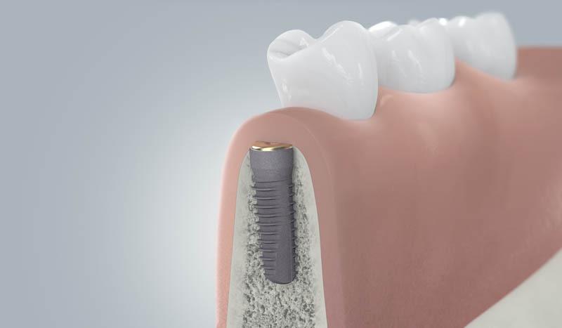 Fogászati implantátum gyógyulási folyamata