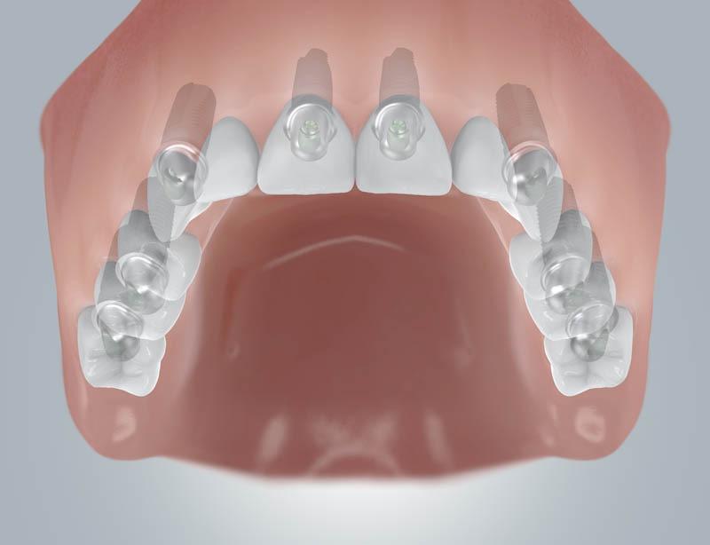 Fogatlan maxilla implantátum beültetéssel
