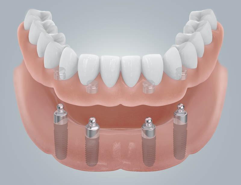 Fogatlan mandibula helyreállítása gömbfejes elhorgonyzással