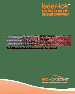 BioHorizons implantációs rendszer, Laser-lok tanulmány