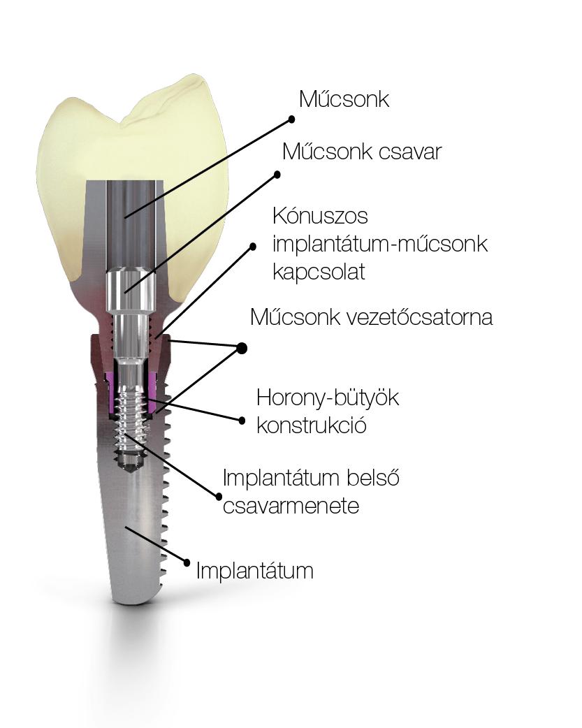 CONELOG implantátum külső geometriája, és belső csavarmenete