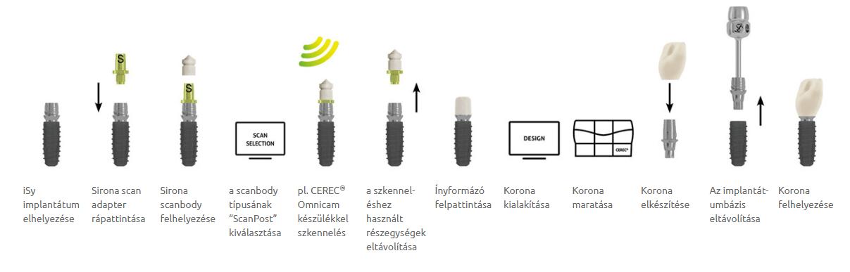 CEREC használata az iSy-vel