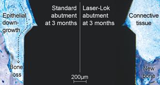 Laser-Lok mikrocsatornák összehasonlítása