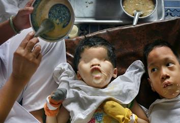 Crianças deformadas pela ação do agente laranja. Crédito: aphist-chron.com
