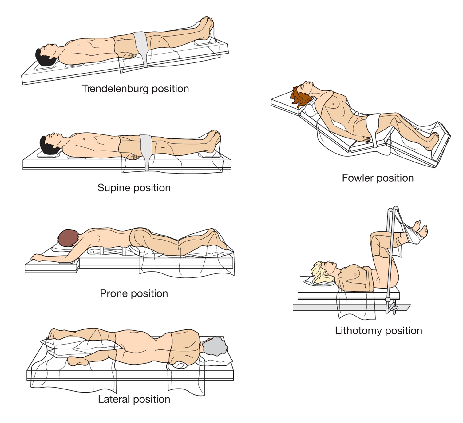 surgical supine positions - 960×876