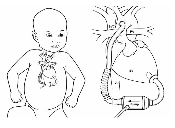 Image result for Ventricular assist device pediatric