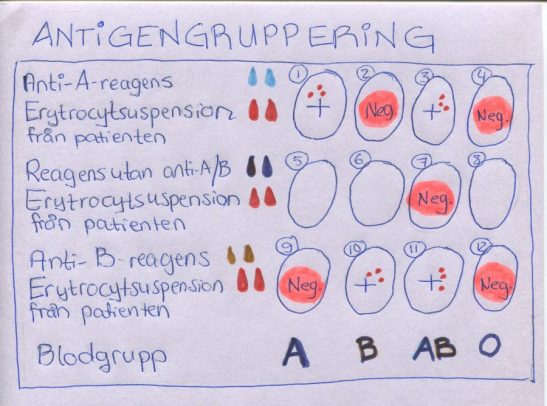 AB0-gruppering
