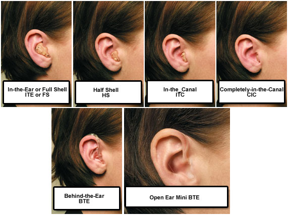 COMPARIOSN OF HEARING AID TYPES