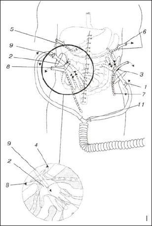 Segmental Circular Necrosis of The Bowel