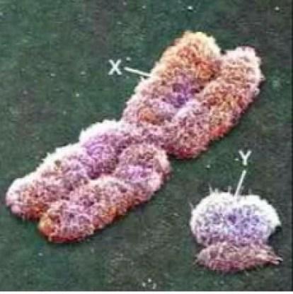 Morfologia chromosomu X i Y