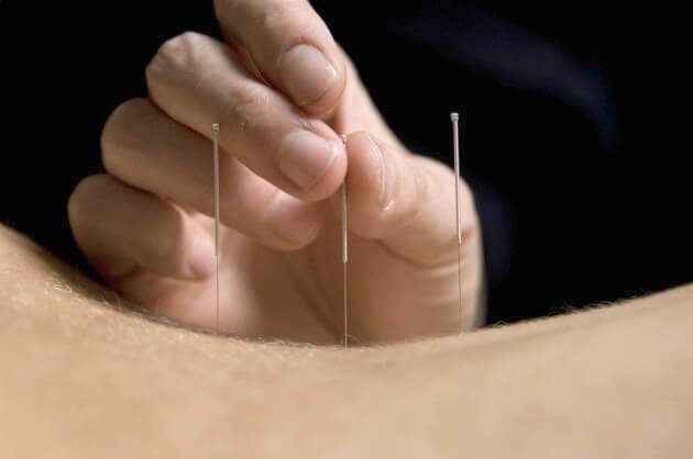 Top 6 Diseases that Acupuncture Can Treat