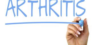 Arthritis and the Natural Way to Treat