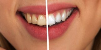 Make Own Herbs Powder Medicinal Formula for Gingivitis Treatment