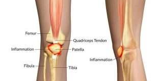 What isPatellofemoral Pain Syndrome?