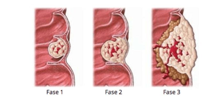 Saiba Tudo Sobre o Câncer de Garganta