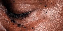 O que é dermatose?