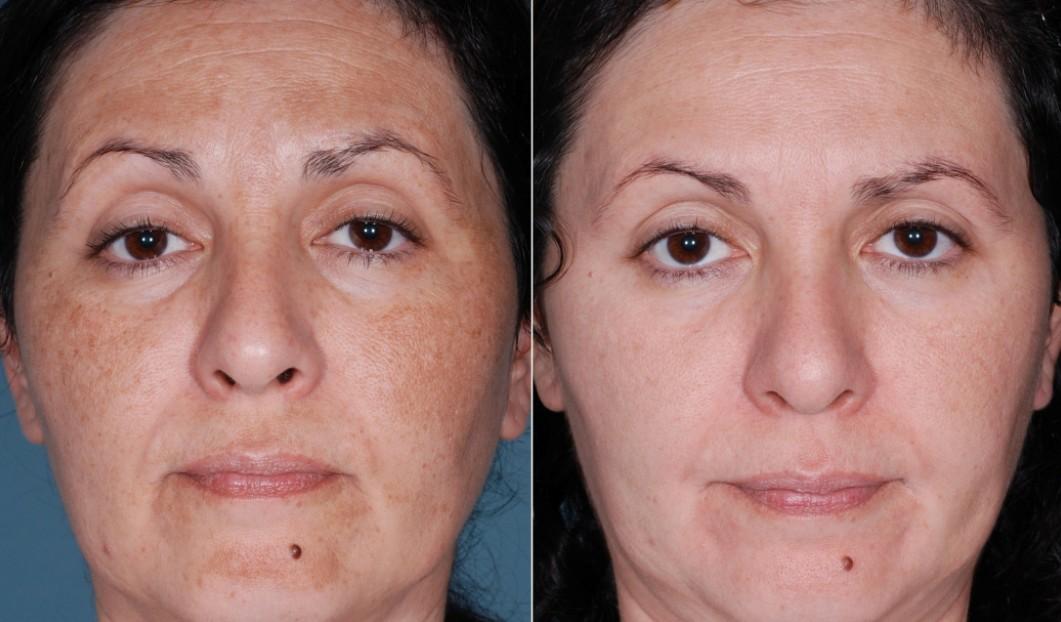 5 Melhores Tratamentos para Remover as Cicatrizes de Acne - Peeling com acidos