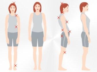 9 Dicas Eficientes para Melhorar a Postura