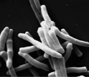 Mycobacterium indicus pranii (MiP)