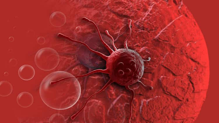 Blood Cancer