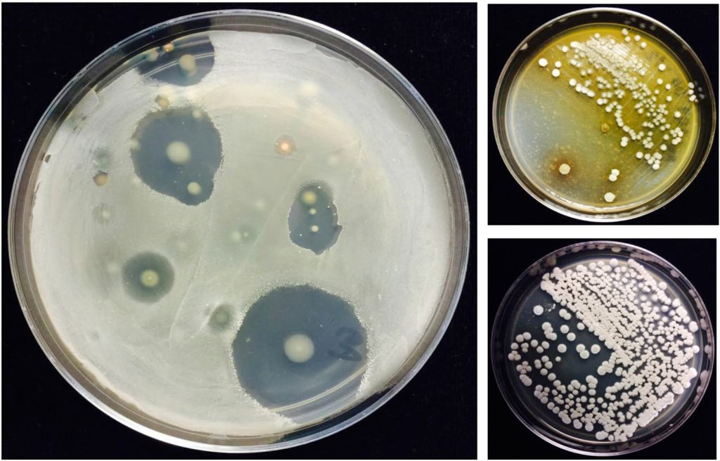 """Streptomyces are diverse soil bacteria known for their prolific production of antibiotics.  Antibiotics can inhibit the growth of diverse plant pathogens in soil.  Each clear area is the """"kill zone"""" of an antibiotic-producing Streptomyces colony (which can be seen in the center) against the specified pathogen target, which has been spread over the surface of the growth medium.  Photo credits: Nuttapon Pombubpa and Kinkel Research Group."""