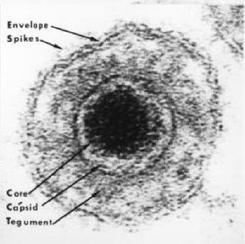 rotifer diagram labeled 1993 honda accord engine epstein barr virus infectious mononucleosis