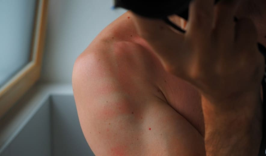 Crema corporal de farmacia para quemadura solar