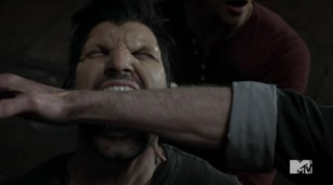 Derek's bite